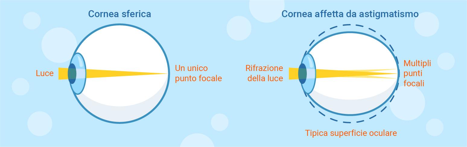 cornea normale e cornea astigmatica
